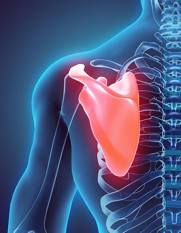 2.首の痛み、肩や肩甲骨の痛み、腕の痛みの原因